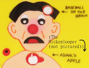 Oohhh! Right in the Hickenlooper! That's gotta hurt! (P.S. When did Rob's brain become the model for Operation?)
