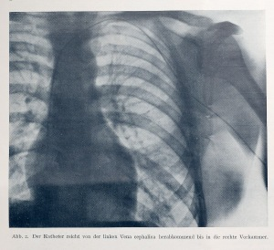 Werner's revolutionary X-ray. The catheter is the thin black line advancing inward from his left arm.